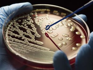 Antibiotic Resistance Can Cost Many Lives
